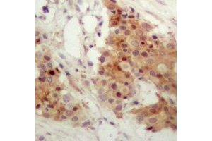 Immunohistochemistry (IHC) image for anti-Interferon Regulatory Factor 3 (IRF3) (C-Term), (pSer385) antibody (ABIN2957643)