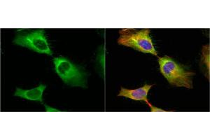 Immunofluorescence (IF) image for anti-Heat Shock 27kDa Protein 1 (HSPB1) (Center) antibody (ABIN2854951)