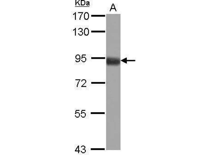 Image no. 1 for anti-Forkhead Box O3 (FOXO3) (C-Term) antibody (ABIN2854686)