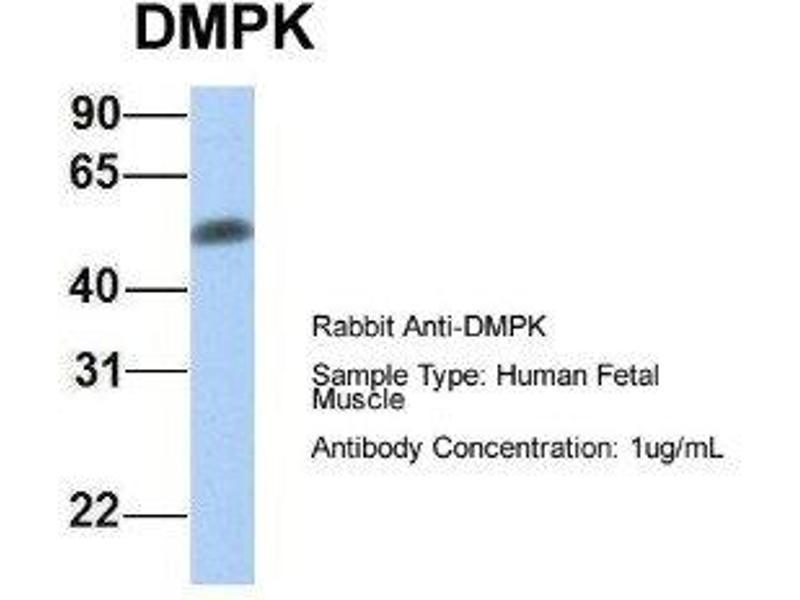 Western Blotting (WB) image for anti-Dystrophia Myotonica-Protein Kinase (DMPK) antibody (ABIN4891553)