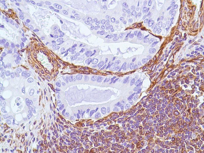Immunohistochemistry (IHC) image for anti-Vimentin antibody (VIM) (ABIN1686955)