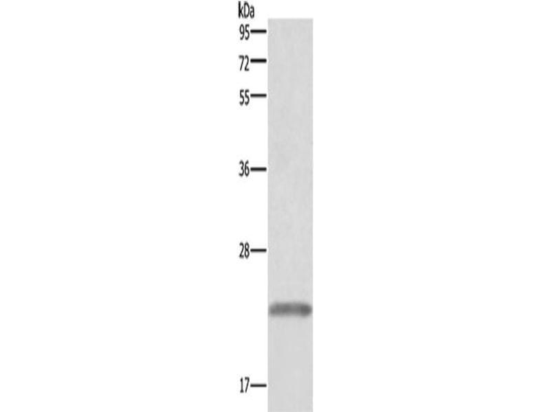 Western Blotting (WB) image for anti-Growth Hormone 1 (GH1) antibody (ABIN2433075)