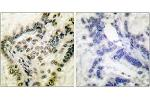 Immunohistochemistry (IHC) image for anti-CREB1 antibody (CAMP Responsive Element Binding Protein 1) (pSer142) (ABIN1531175)