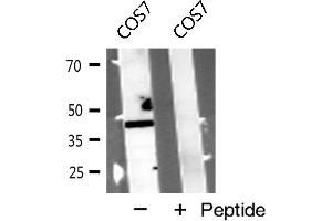 Image no. 1 for anti-Cysteinyl Leukotriene Receptor 1 (CYSLTR1) antibody (ABIN6260900)
