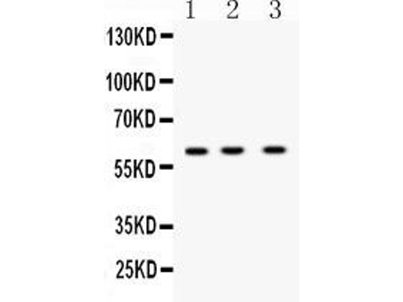 Western Blotting (WB) image for anti-Tumor Necrosis Factor Receptor Superfamily, Member 10b (TNFRSF10B) (AA 233-440) antibody (ABIN5518794)