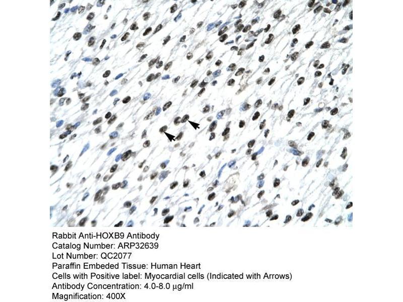 Immunohistochemistry (IHC) image for anti-Homeobox B9 (HOXB9) (N-Term) antibody (ABIN182626)