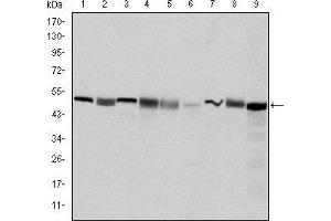 Western Blotting (WB) image for anti-CCT2 antibody (Chaperonin Containing TCP1, Subunit 2 (Beta)) (ABIN969009)