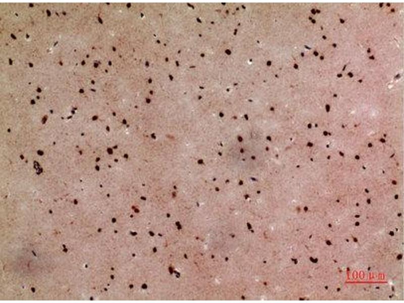 Immunohistochemistry (IHC) image for anti-High-Mobility Group Box 1 (HMGB1) (Internal Region) antibody (ABIN3181047)