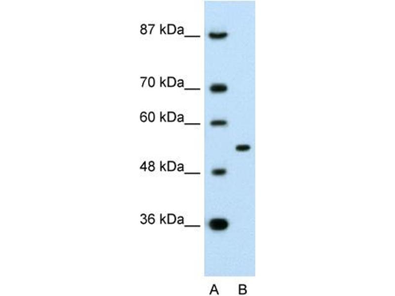 Western Blotting (WB) image for anti-Amyloid beta (A4) Precursor Protein-Binding, Family A, Member 1 (APBA1) (N-Term) antibody (ABIN2792284)