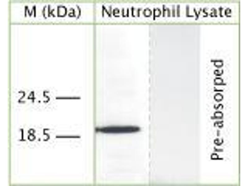 Western Blotting (WB) image for anti-Cathelicidin antibody (Cathelicidin Antimicrobial Peptide) (ABIN350184)