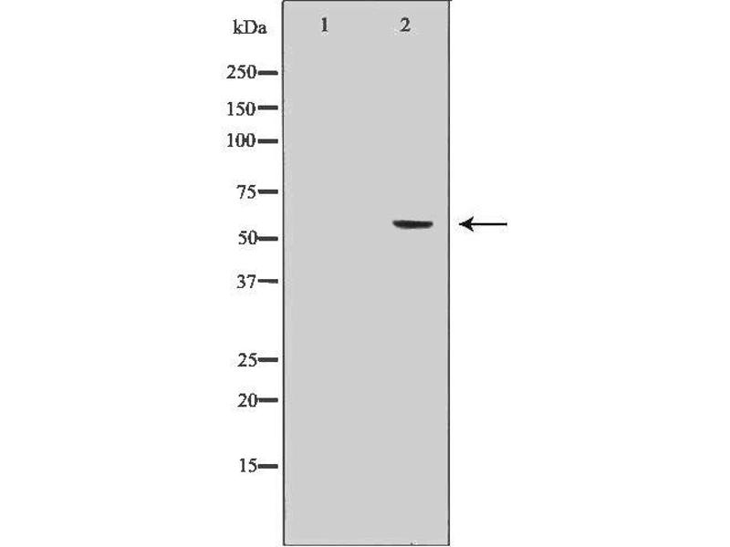 Image no. 3 for anti-Cytochrome P450, Family 19, Subfamily A, Polypeptide 1 (CYP19A1) antibody (ABIN6261166)