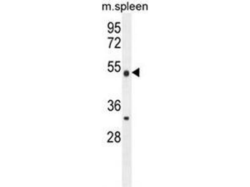 Western Blotting (WB) image for anti-Methyltransferase Like 4 (METTL4) (AA 322-352), (C-Term) antibody (ABIN953400)