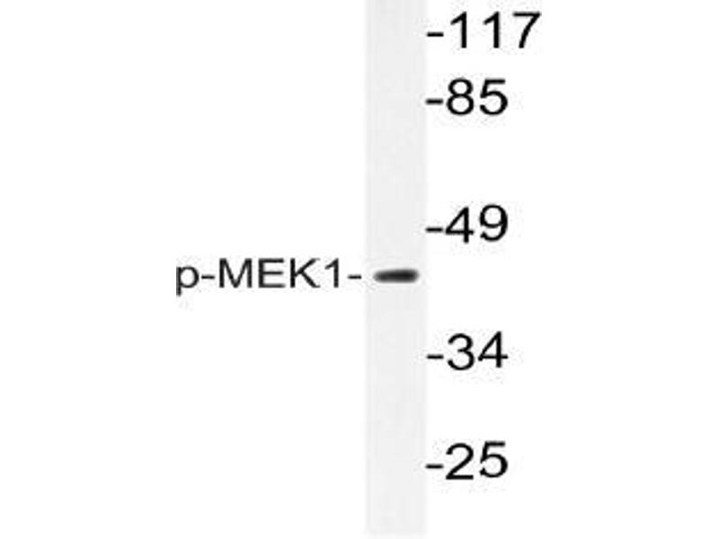 Western Blotting (WB) image for anti-MAP2K1 antibody (Mitogen-Activated Protein Kinase Kinase 1) (pThr292) (ABIN498700)