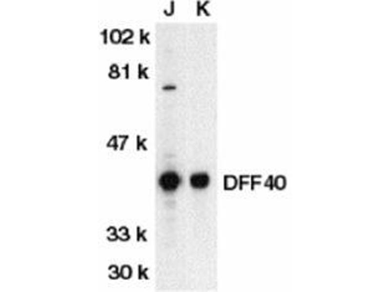 Western Blotting (WB) image for anti-DFFB antibody (DNA Fragmentation Factor, 40kDa, beta Polypeptide (Caspase-Activated DNase)) (N-Term) (ABIN499738)