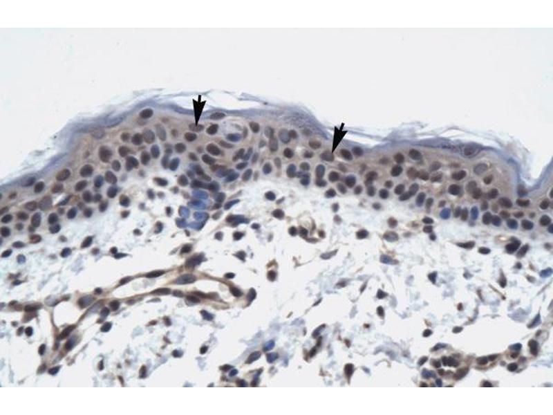 Immunohistochemistry (IHC) image for anti-TAF9 抗体 (RNA Polymerase II TBP-Associated Factor Subunit G) (N-Term) (ABIN2775865)