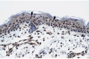 Immunohistochemistry (IHC) image for anti-RNA Polymerase II TBP-Associated Factor Subunit G (TAF9) (N-Term) antibody (ABIN2775865)