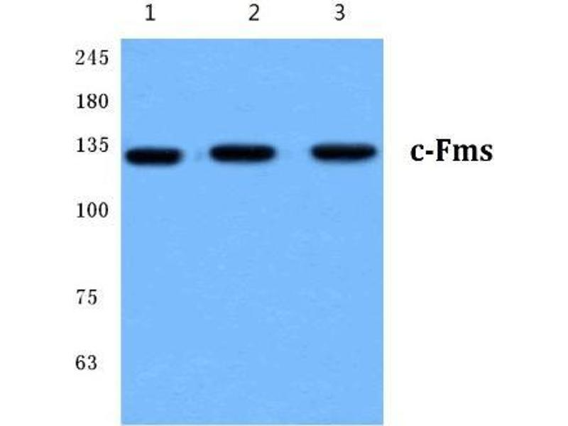 Western Blotting (WB) image for anti-CSF1R antibody (Colony Stimulating Factor 1 Receptor) (ABIN498117)