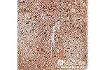 Immunohistochemistry (Paraffin-embedded Sections) (IHC (p)) image for anti-Forkhead Box P3 (FOXP3) (AA 400-431), (C-Term) antibody (ABIN153185)