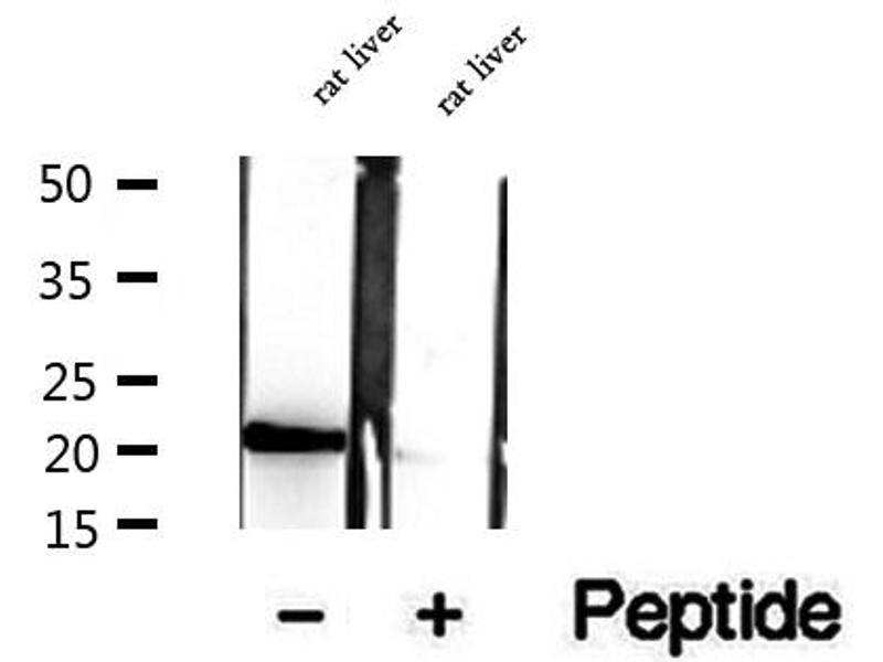 Western Blotting (WB) image for anti-Canopy 2 Homolog (Zebrafish) (CNPY2) antibody (ABIN6260916)
