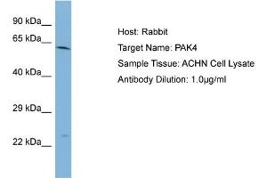 Western Blotting (WB) image for anti-PAK4 antibody (P21-Activated Kinase 4) (Middle Region) (ABIN2783400)