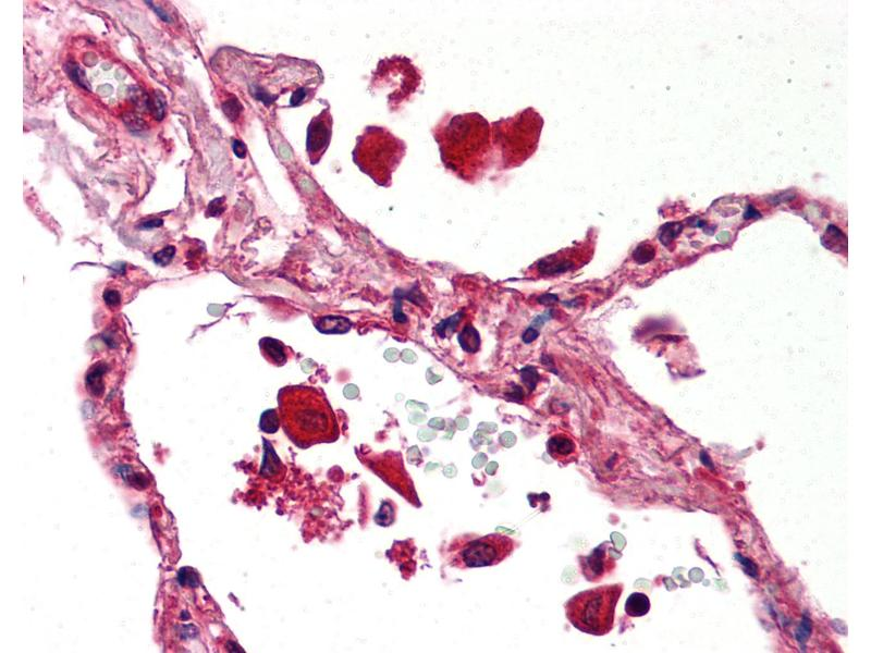 Immunohistochemistry (IHC) image for anti-Signal Transducer and Activator of Transcription 1, 91kDa (STAT1) antibody (ABIN239822)