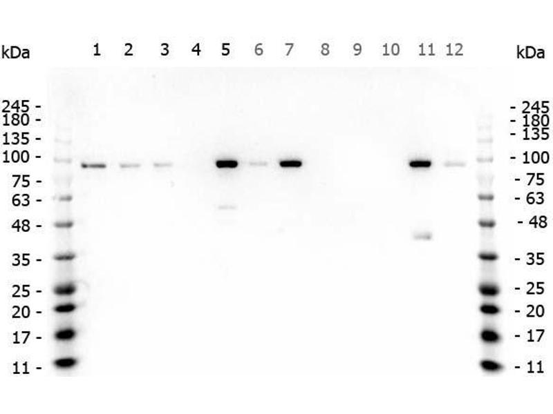 Western Blotting (WB) image for anti-Catenin, beta (C-Term) antibody (ABIN1043906)