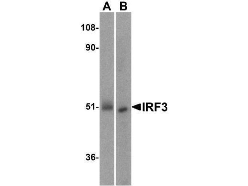 Western Blotting (WB) image for anti-Interferon Regulatory Factor 3 (IRF3) antibody (ABIN4327552)