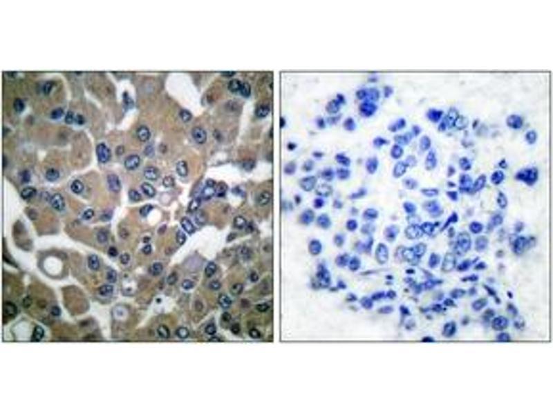 Immunohistochemistry (IHC) image for anti-Phospholipase C gamma 1 antibody (phospholipase C, gamma 1) (pTyr783) (ABIN1531236)