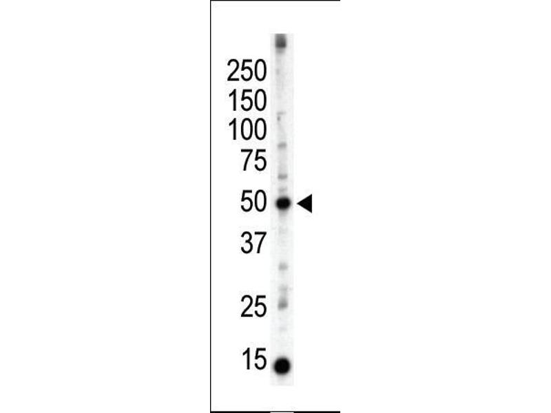 Western Blotting (WB) image for anti-Protein Kinase C and Casein Kinase Substrate in Neurons 3 (PACSIN3) (AA 1-30), (N-Term) antibody (ABIN392668)