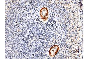 Image no. 1 for anti-Carbonic Anhydrase III (CA3) (AA 1-260) antibody (ABIN1996977)