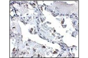 Image no. 1 for anti-SH3-Domain Binding Protein 4 (SH3BP4) (C-Term) antibody (ABIN500704)