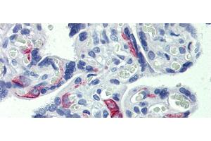 Image no. 2 for anti-Zinc Finger Protein 71 (ZNF71) (Middle Region) antibody (ABIN2781150)