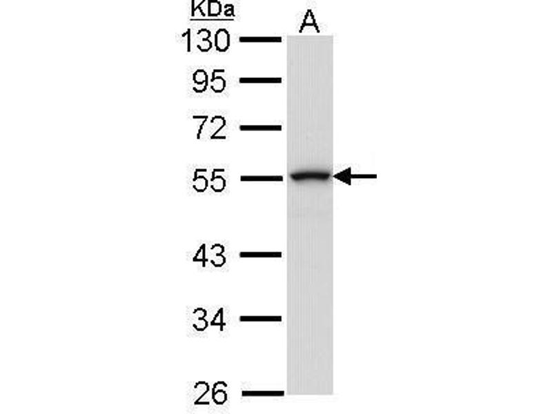 Western Blotting (WB) image for anti-Mitogen-Activated Protein Kinase Kinase Kinase 8 (MAP3K8) (Center) antibody (ABIN2855466)
