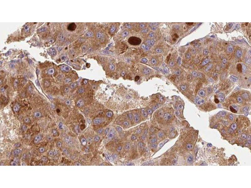 Immunohistochemistry (IHC) image for anti-Integrin alpha M (ITGAM) antibody (ABIN6262687)