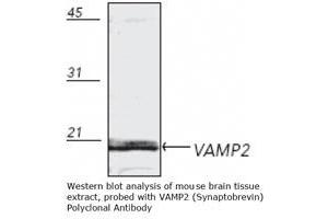 Western Blotting (WB) image for anti-Vesicle-Associated Membrane Protein 2 (Synaptobrevin 2) (VAMP2) antibody (ABIN151425)
