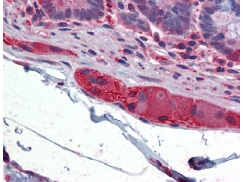 Immunohistochemistry (IHC) image for anti-TUBB2A antibody (Tubulin, beta 2A) (AA 1-446) (ABIN614747)