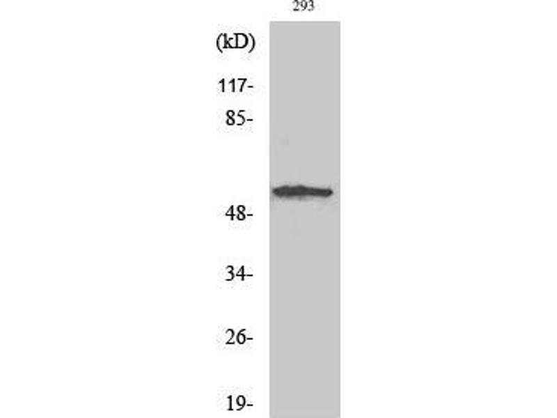 Western Blotting (WB) image for anti-serum/glucocorticoid Regulated Kinase 1 (SGK1) (Tyr1062) antibody (ABIN3186931)