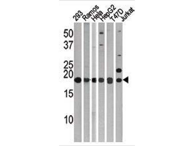 Western Blotting (WB) image for anti-LC3 (APG8C) (AA 1-30), (N-Term) antibody (ABIN388478)
