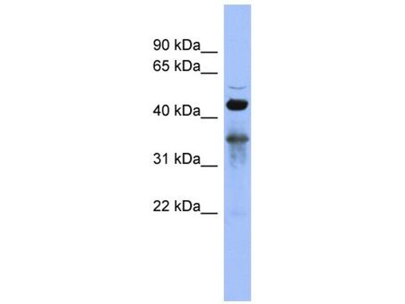 Western Blotting (WB) image for anti-RNA Binding Motif Protein 9 (RBM9) (Middle Region) antibody (ABIN2778756)
