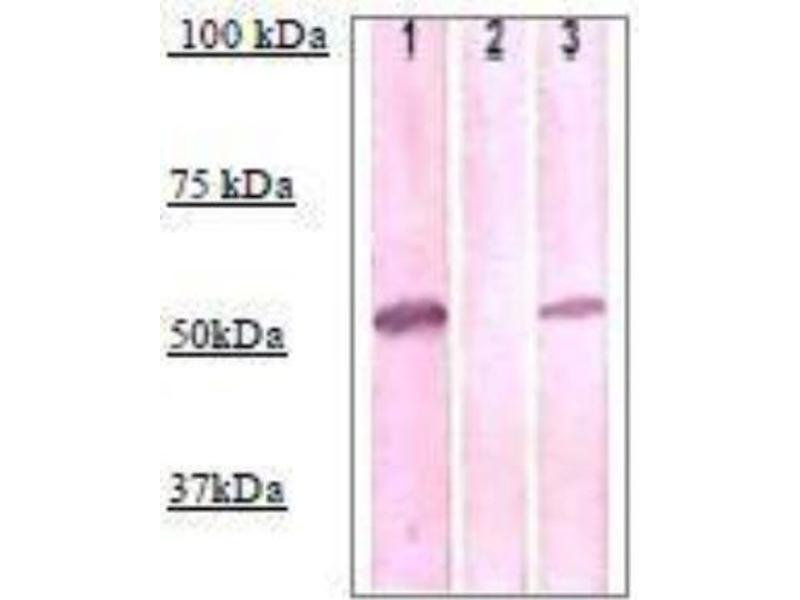 Western Blotting (WB) image for anti-Interleukin-1 Receptor-Associated Kinase 4 (IRAK4) (pThr345) antibody (ABIN4327517)