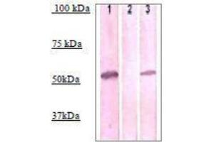 Western Blotting (WB) image for anti-IRAK4 antibody (Interleukin-1 Receptor-Associated Kinase 4) (pThr345) (ABIN4327517)