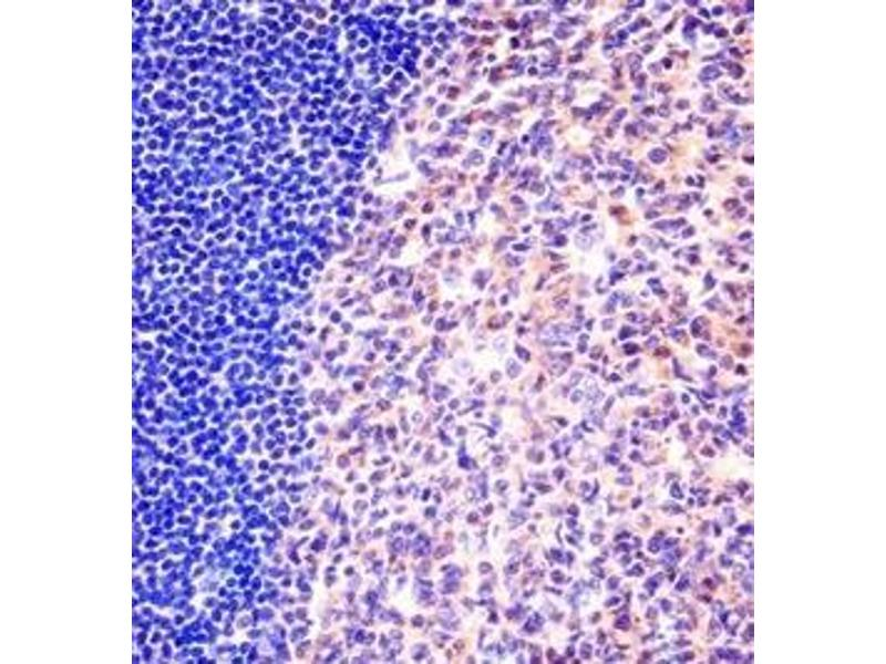 Immunohistochemistry (Paraffin-embedded Sections) (IHC (p)) image for anti-Minichromosome Maintenance Complex Component 6 (MCM6) (AA 79-109), (N-Term) antibody (ABIN953355)