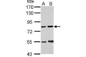 Image no. 1 for anti-Dual-Specificity tyrosine-(Y)-phosphorylation Regulated Kinase 3 (DYRK3) (N-Term) antibody (ABIN2856599)