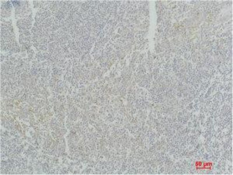 Immunohistochemistry (IHC) image for anti-Signal Transducer and Activator of Transcription 4 (STAT4) antibody (ABIN3181592)