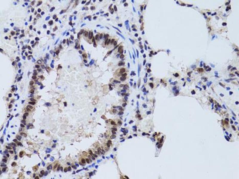 Image no. 4 for anti-Sirtuin 7 (SIRT7) antibody (ABIN6566719)