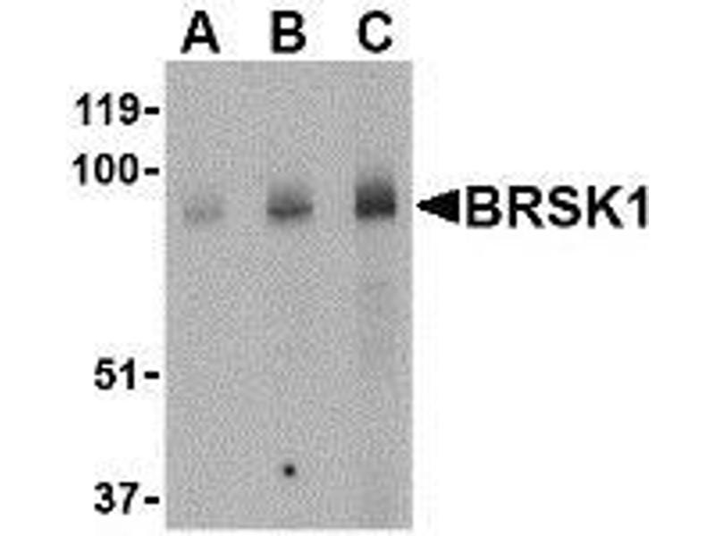 Western Blotting (WB) image for anti-BRSK1 antibody (BR Serine/threonine Kinase 1) (Center) (ABIN499501)