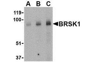 anti-BR Serine/threonine Kinase 1 (BRSK1) (Center) antibody (2)