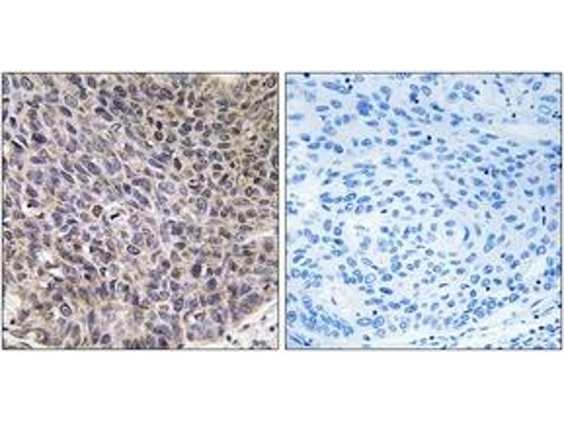 Immunohistochemistry (IHC) image for anti-Cytochrome P450, Family 4, Subfamily B, Polypeptide 1 (CYP4B1) (AA 141-190) antibody (ABIN1534398)