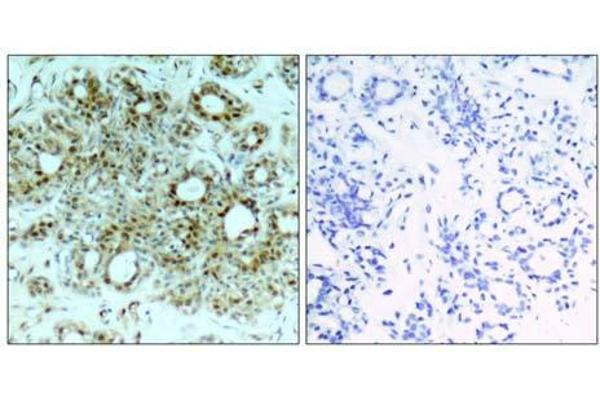 Immunohistochemical analysis of paraffin-embedded human breast carcinoma tissue, using NFκB-p65 (Ab-311) antibody (E021252).