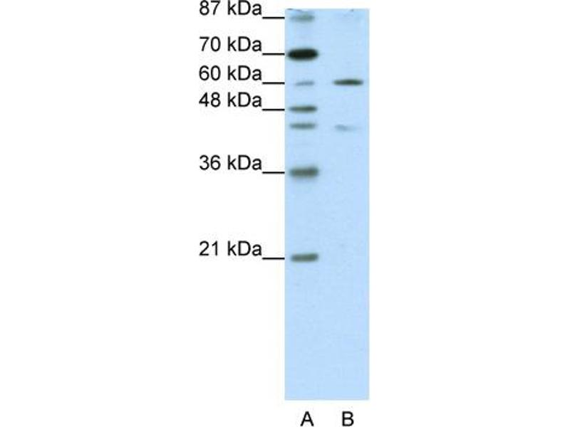 Western Blotting (WB) image for anti-Zinc Finger Protein 496 (ZNF496) (N-Term) antibody (ABIN183828)